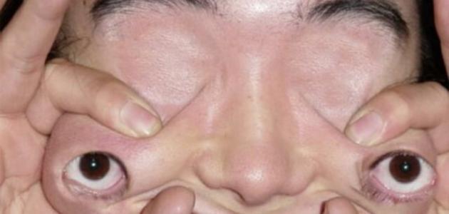 ما هو علاج جحوظ العين