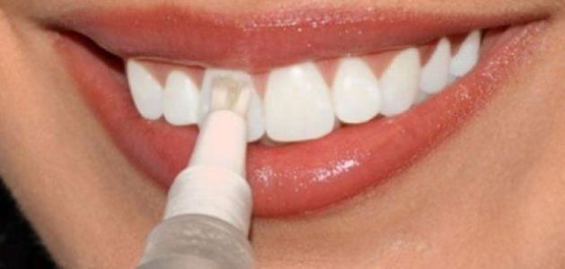 ما هي اضرار برد الاسنان