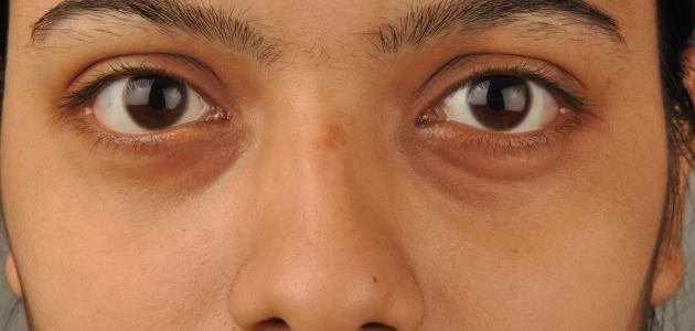 علاج السواد تحت العين طبيعياً