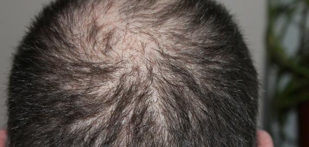 علاج تساقط الشعر وتكثيفه