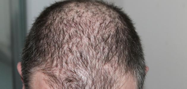 ما هو حل تساقط الشعر عند الرجال