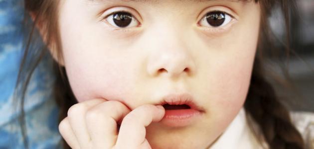 مضاعفات مرض داون وتشخيصه