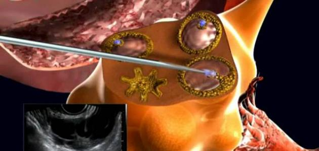 ما هي عملية الحقن المجهري