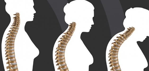 ما هي علامات هشاشة العظام