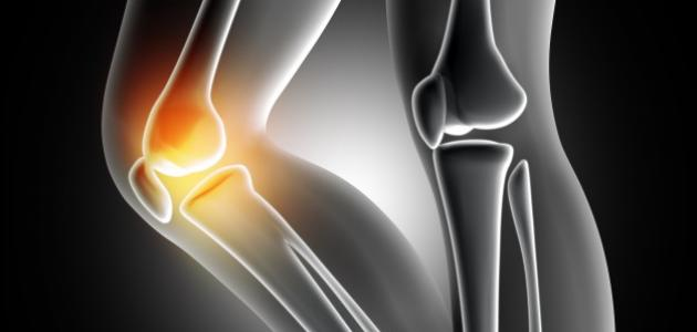 طريقة علاج خشونة الركبة