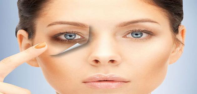 أسباب ظهور الهالات السوداء تحت العين