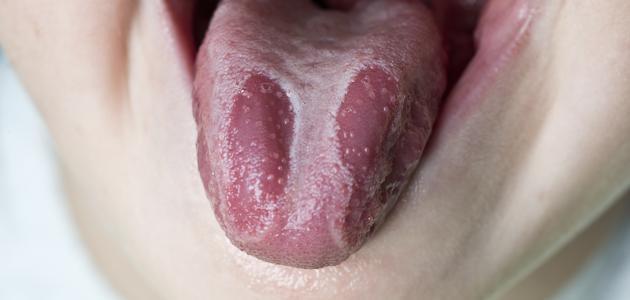 ما هي فطريات الفم