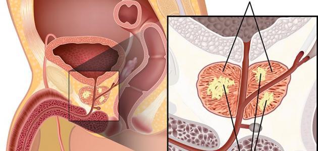 إنتشار مرض البروستاتا