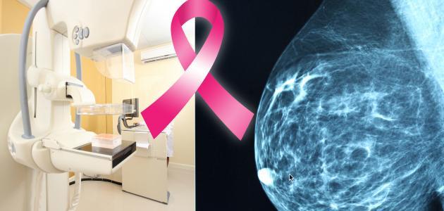 كيفية معرفة الإصابة بسرطان الثدي