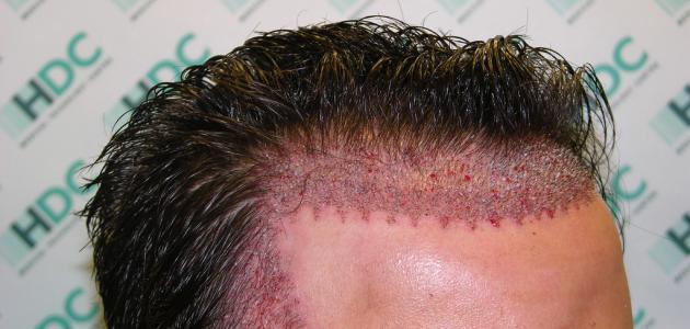 ما هو ترميم الشعر