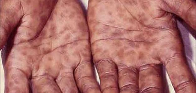 المرحلة الثانية من مرض الزهري