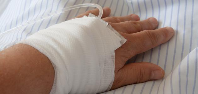 ما هي أعراض نقص الصوديوم وعلاجه