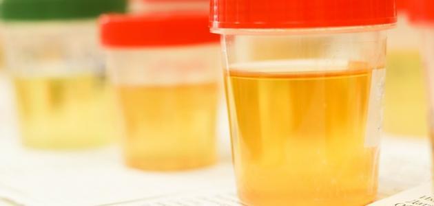 أعراض التهاب مجاري البول
