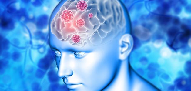 أعراض التهاب خلايا المخ