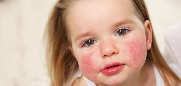 تفضل غير مرض يسكر علاج حساسية الروبيان في المنزل Comertinsaat Com