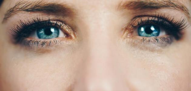 أفضل علاج للسواد حول العين