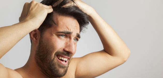 أسباب قشرة الشعر وأنواعها