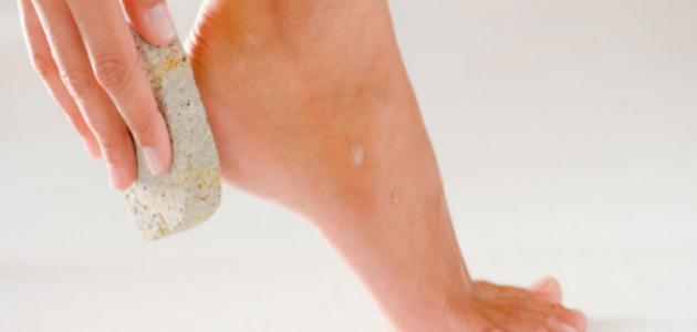 كيفية معالجة تشقق القدمين