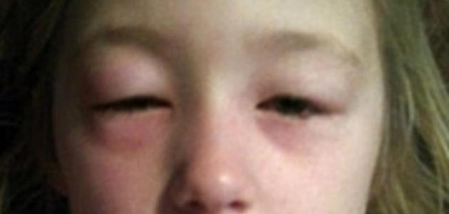 كيفية علاج تورم العين