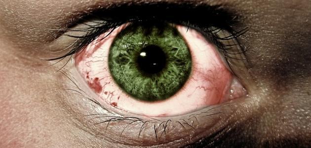 أمراض العين