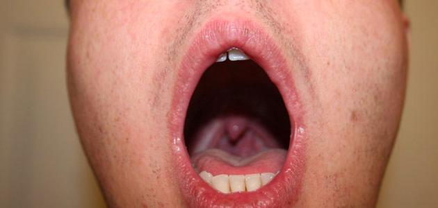 التهاب البلعوم