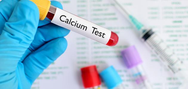 تحليل نسبة الكالسيوم في الدم