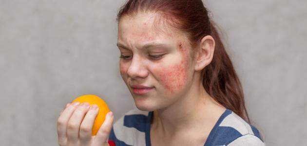 حساسية الجلد من الأكل