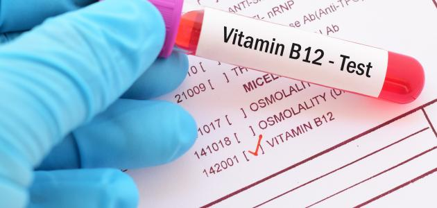 تحليل فيتامين ب12
