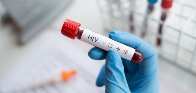 تحليل مرض الإيدز