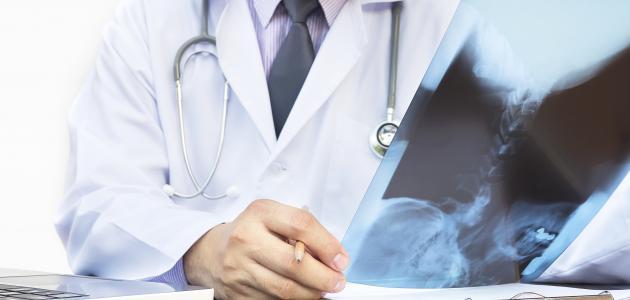 تحليل هشاشة العظام