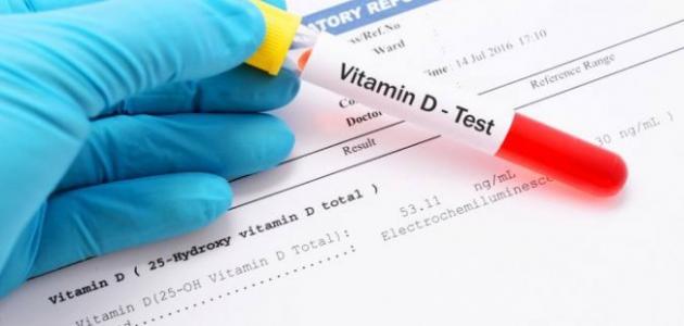 تحليل فيتامين د الطبيعي