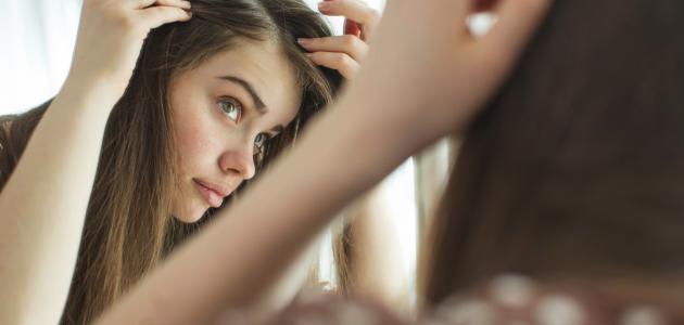 المحافظة على الشعر من الصلع