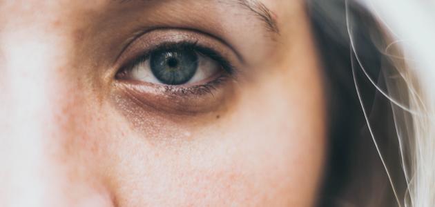أفضل علاج سواد تحت العين