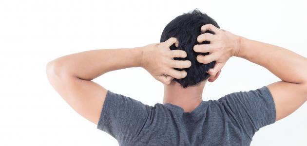 أضرار حك فروة الرأس