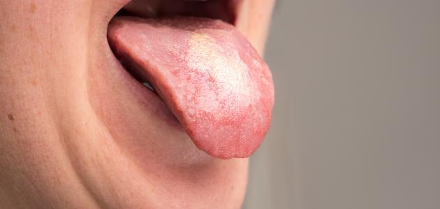 أسباب فطريات الفم المتكررة