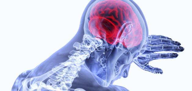 ارتفاع ضغط المخ