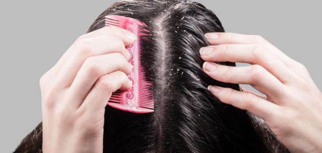 أنواع قشرة الشعر