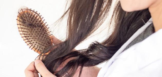 هل القشرة تسبب تساقط الشعر