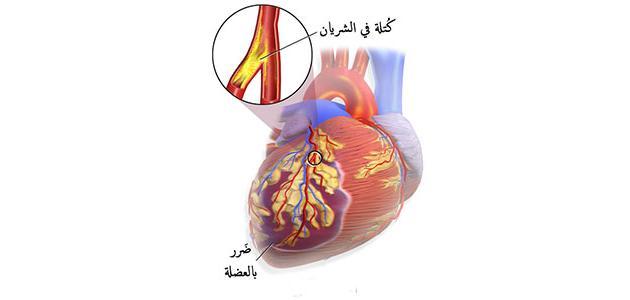 ارتجاع صمام القلب