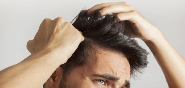 أنواع قشرة الشعر وطرق علاجها