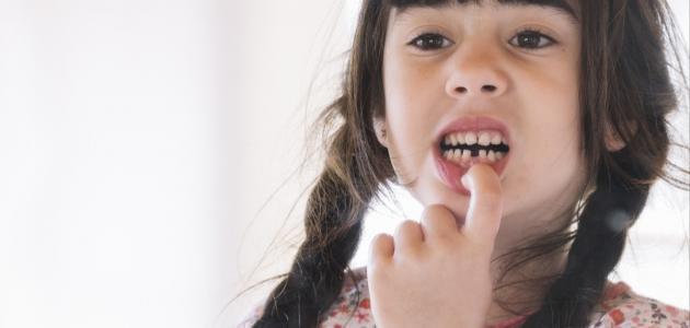 حلم سقوط الأسنان
