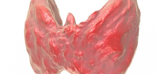 آثار خمول الغدة الدرقية