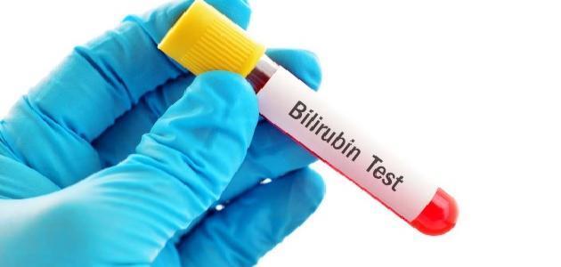 تحليل البيليروبين