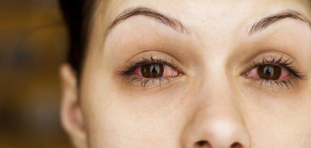 أعراض التهاب الملتحمة في العين