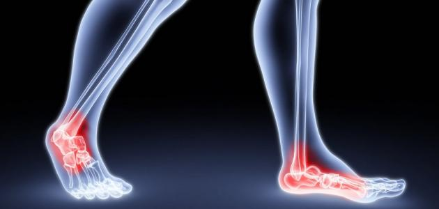 أعراض التهاب الوريد الخثري