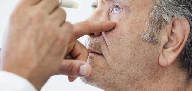 أعراض التهاب العصب البصري وعلاجه