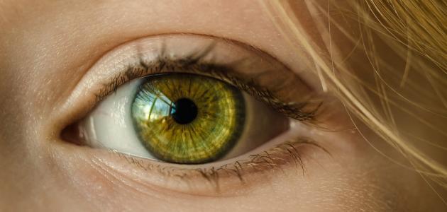 أورام العين الحميدة