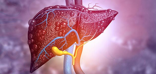 أنواع أورام الكبد