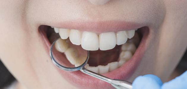 أعراض التهاب اللثة والأسنان