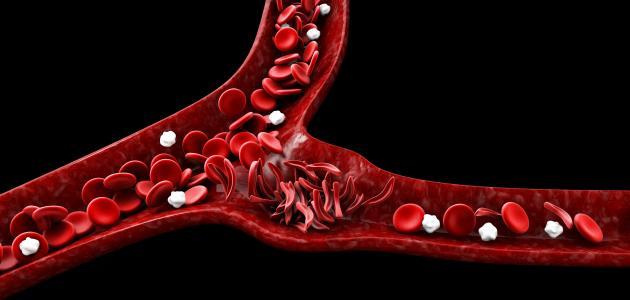 أعراض الأنيميا ونقص الحديد
